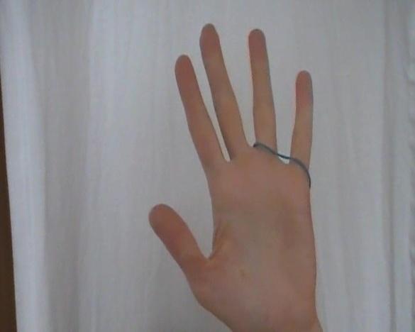 Bild -1