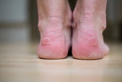 Neue Schuhe verursachen oft Blasen.