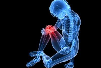 Was tun bei Arthrose im Knie?