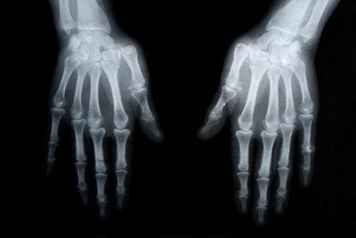 Verstaucht oder gebrochen? - Fingerverletzungen behandeln