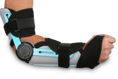 Schmerzen im Arm kann Ruhe lindern.