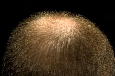 Massiver Haarausfall muss abgeklärt werden.