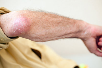 Eine Schleimbeutelentzündung am Ellbogen ist schmerzhaft.