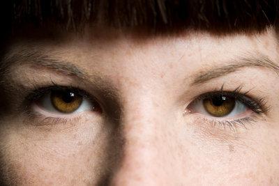 Kühlen Sie Mückenstiche am Auge.