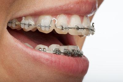 Gelbe Zähne müssen nicht sein.