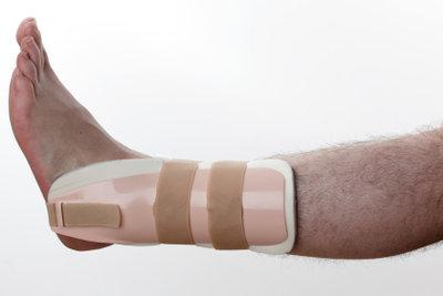Bänderrisse am Sprunggelenk sind häufige Verletzungen.