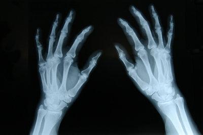 Eine Kapselprellung am Finger tut weh.