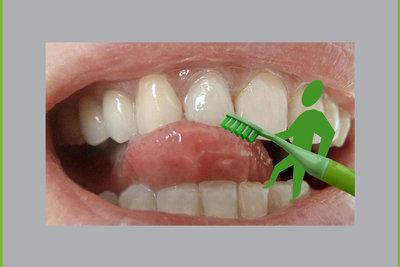 Natron reinigt Ihre Zähne.