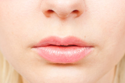 Aufgerissene Lippen müssen nicht sein.