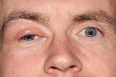 Ein herabhängendes Augenlid ist äußerst lästig.