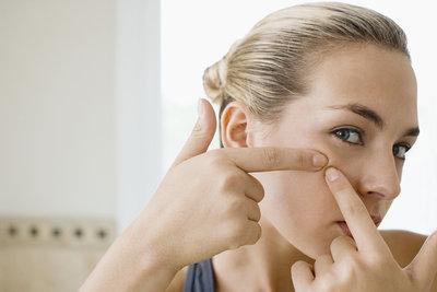 Mitesser sollten Sie nicht mit blanken Fingern ausdrücken.