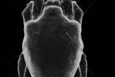 Milben elektronenmikroskopisch dargestellt.