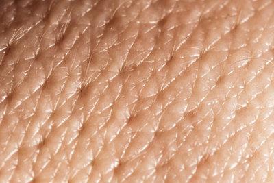 Gerade im Gesicht treten Talgdrüsenentzündungen auf.