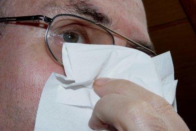 Eine kalte Nase sollte beobachtet werden.