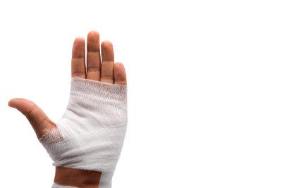 Handverletzungen gehören zu den häufigsten Verletzungen.