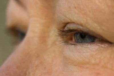 Tränensäcke treten meist im Alter auf.