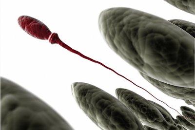 Spermien brauchen ein gesundes Umfeld.