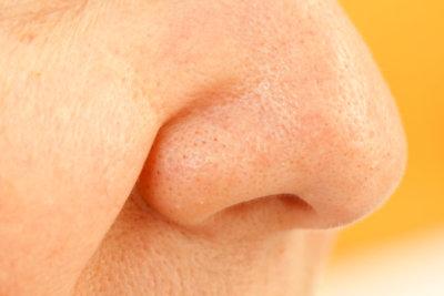 Die Nasenschleimhaut ist empfindlich.