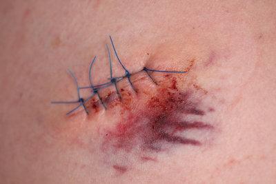 Operationsnarben mit Silikonpflastern behandeln