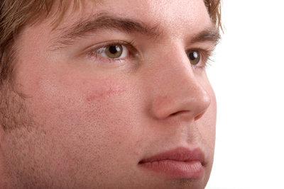 Narben können mit Silikonpflastern behandelt werden.