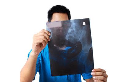 Aufbewahrung und Entsorgung von Röntgenbildern.