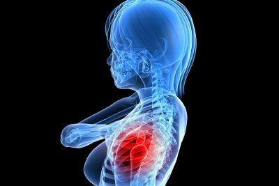 Eine Schleimbeutelentzündung ist sehr schmerzhaft.