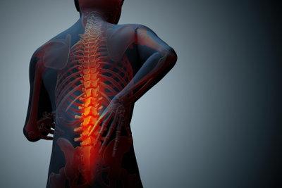 Bandscheibenverschleiß kann Rückenschmerzen verursachen.