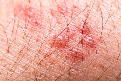 Herpes ist ansteckend.