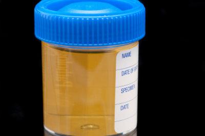 Urin sollte nicht stark stinken.