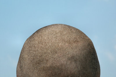 Gegen gereizte Kopfhaut kann man vorgehen.