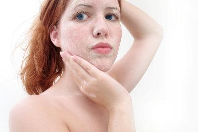 Auch blasse Haut kann attraktiv wirken.