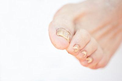 Ein Nagelpilz kann auch die Fingernägel befallen.