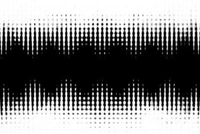 Ein EEG gibt Aufschluss über die Gehirntätigkeit.