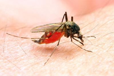 Allergische Reaktion verursacht eine Schwellung der Haut.