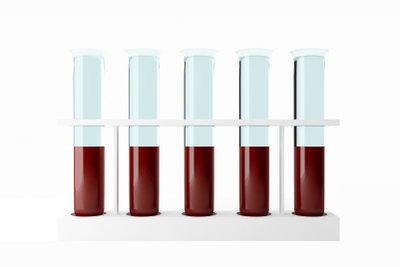 Bicarbonat ist wichtig für den Blutpuffer.