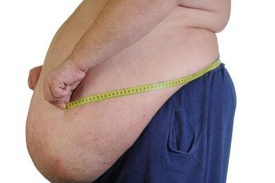 Übergewicht kann zu Hänorrhoiden führen.