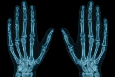 Im Röntgenbild die maximale Größe erkennen.