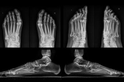Röntgen liefert die sichere Diagnose.