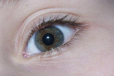 Die Augenfarbe kann sich verändern.