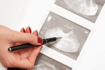 Im Ultraschall die Eierstöcke erkennen