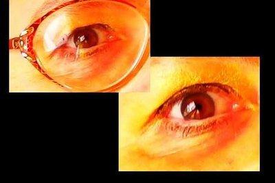 Eine Brille verändert das Aussehen der Augen.