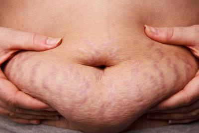 Eine Ultraschallbehandlung kann helfen, das Fett loszuwerden.