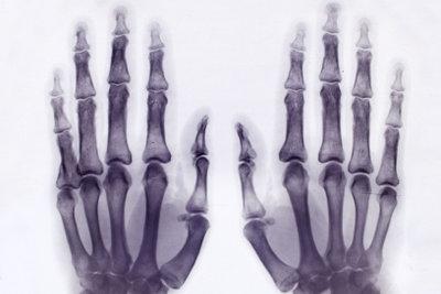 Das Karpalgelenk erkennt man im Röntgenbild zwischen den Mittelhandknochen.