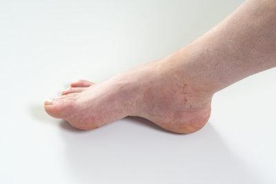 Geschwollene Füße sind schmerzhaft.