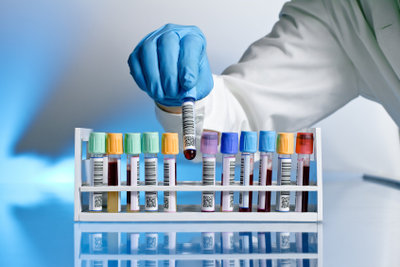 Für die Bestimmung der BSG nimmt der Arzt Blut ab.