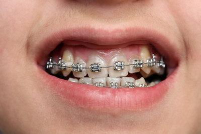 Krankenkassen beteiligen sich selten an den Kosten für Zahnspangen von Erwachsenen.