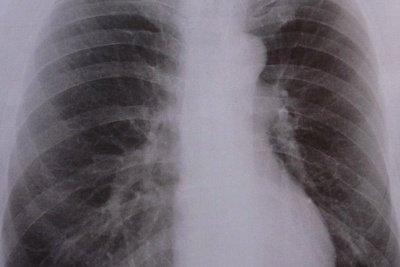 Die Anatomie der Lunge im Röntgenbild.