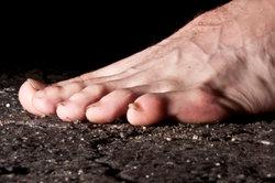 Füße können durch Deformitäten stark leiden.