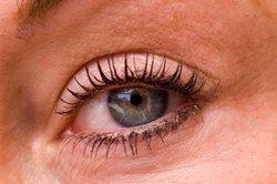 Erweiterte und stärker durchblutete Adern in blauen Augen