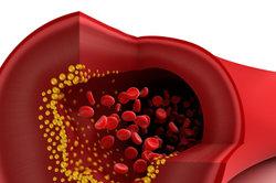 Bei Eisenmangel transportieren die roten Blutkörperchen zu wenig Sauerstoff.
